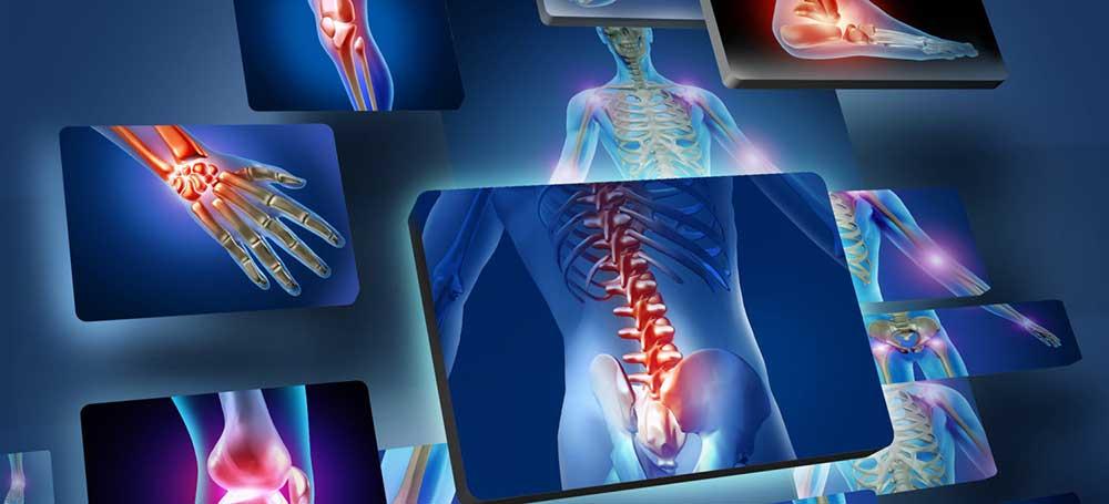 valu poidlaharja liigesevalu pohjustab osteokondroos ja valu olaliigendites