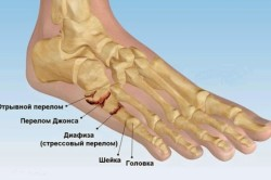 liigeste meditsiini artriit kui olgade liigesed on haiged