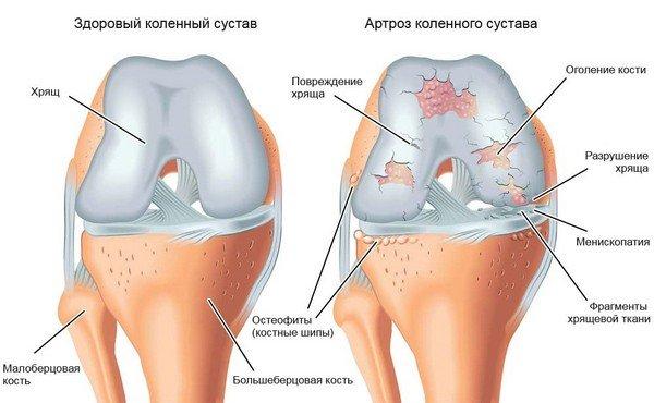 liigeste ravimeetodite ravi