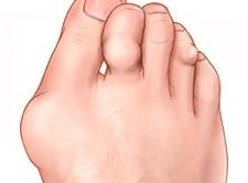 vahendid artroosi jalgade raviks odav kute salv lihastele ja liigestele