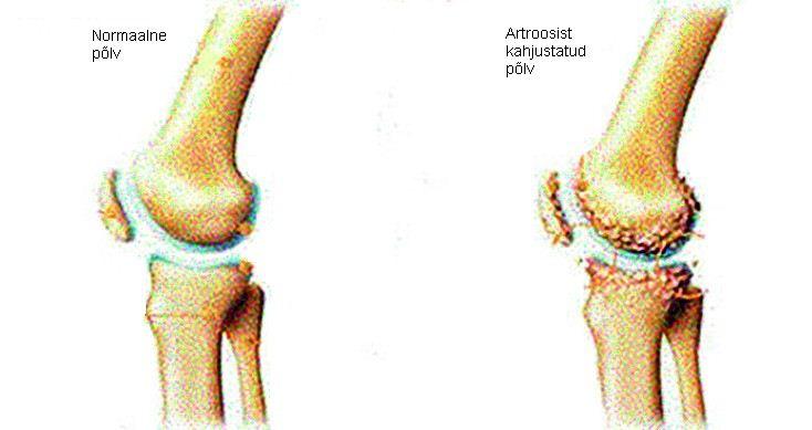 elbow liigese sisemise epiprodiliidi ravi