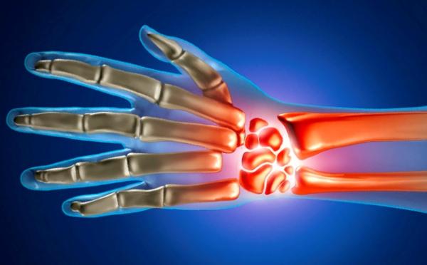 kuidas maarata liigeste artroosi