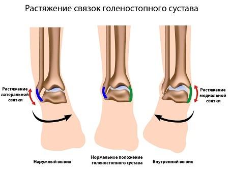 kate ahela ravi artriit kuunarnuki liigese ravijargne artroos