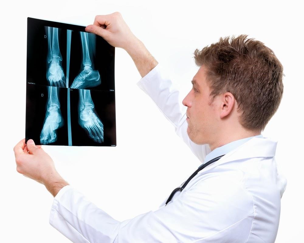 fusio artroosi ravi higistamine salvesta paisub