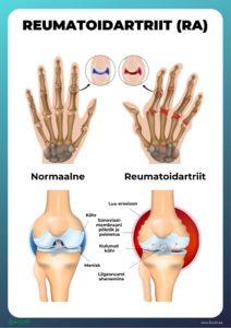 loualuu liigeste ravi artroos