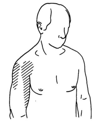 hurt harjade rasedus liigendid kandmisel
