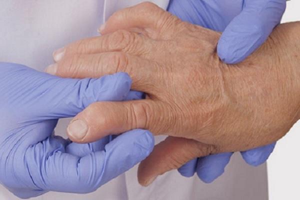 kate liigeste artriidi ravi kuidas eemaldada valu uhise kateharjades