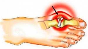 mis aitab liigeste artroosiga