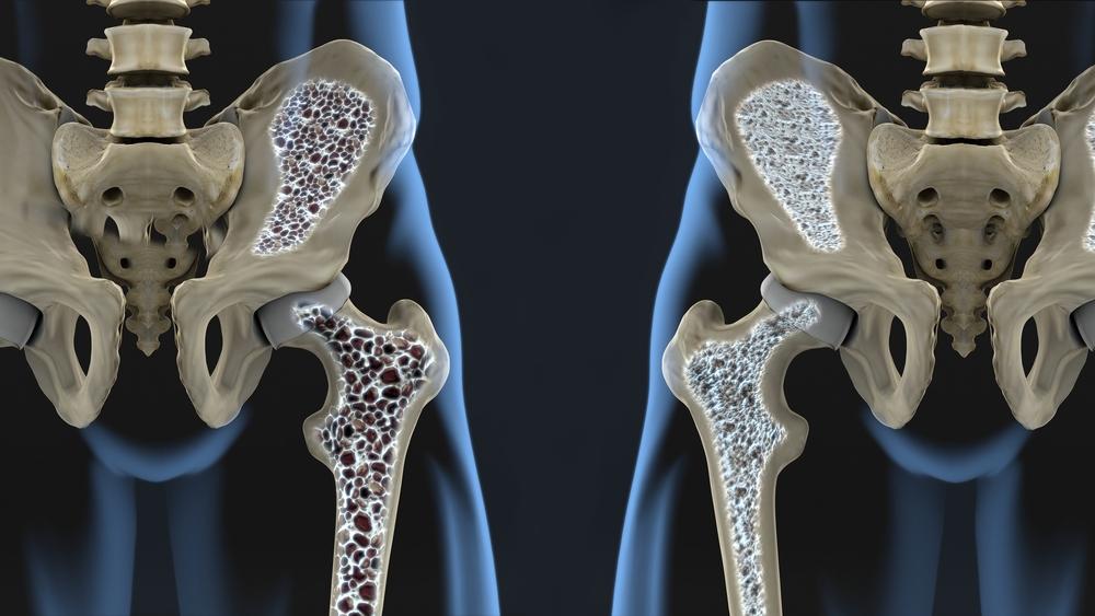 olaliikluse traumaatiline artroos