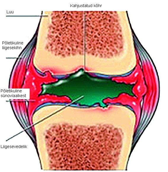 sormede liigeste artriidi tabletid kuunarnuki folk oiguskaitsevahendite ulevaateid