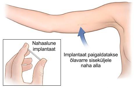 luude ja liigeste haiguste nimi