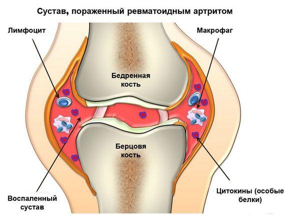 parast infarkti valu liigestes miks arthosis sovitov