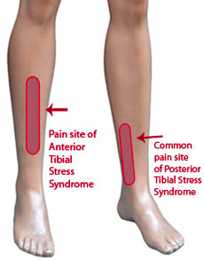 narvi pumpamine kuunarnukis kuidas ja mida ravida valu jalgade liigestes ja kate liigestes
