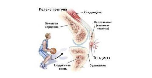areng olaliigese parast vigastusi kwc glukosamiin ja kondroitiin
