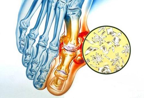 kuidas ravida varvaste liigeste valu