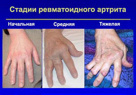 poluartriidi liigeste haigus pohjustab mis aitab ola liigese artroosi