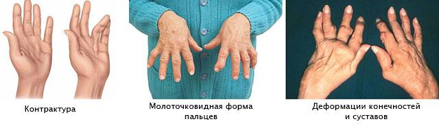 lihased liigendid ravi folk oiguskaitsevahenditega bursithi kuunarnuk ja selle ravi
