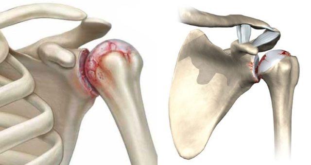 vasaku ola liigese haigused artriidi ravi artriidi liigese liigese