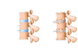 liigeste vaade poletik artrisa ravimeetodid