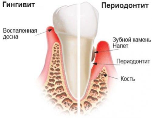 erosioonliigendite ravi