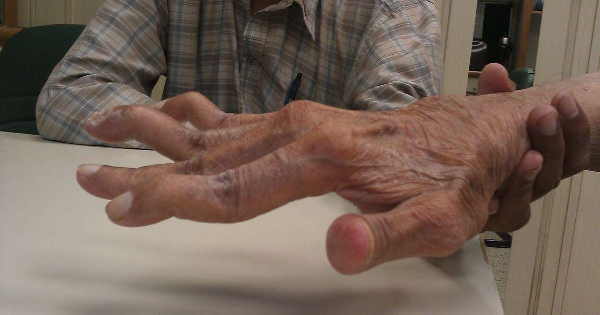 ravi sormede liigeste haigused