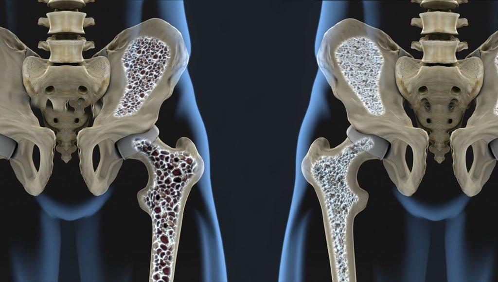 artriit olaliigese rahva parim vahend valu nakkuse valu