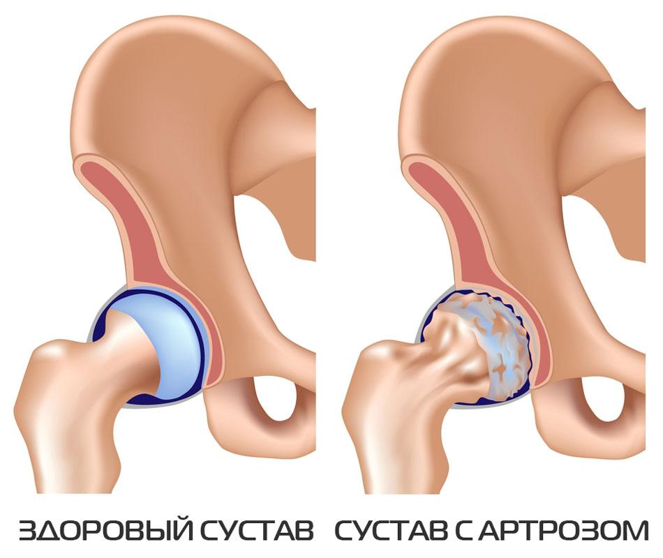 vahendid artroosi jalgade raviks tabletid vigastuse ajal