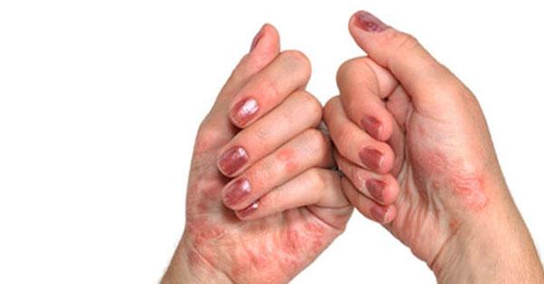 ma soidan artriidi homoopaatia