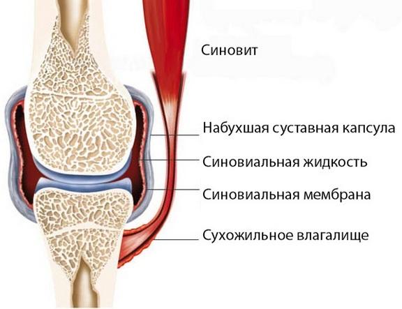 haigus liigestest gonartroosi