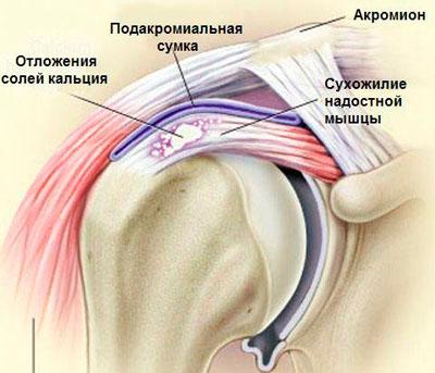 vasaku ola liigese haigused uhise ravi poletik kodus