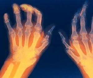 kasi liigesed haiget ja pigistage