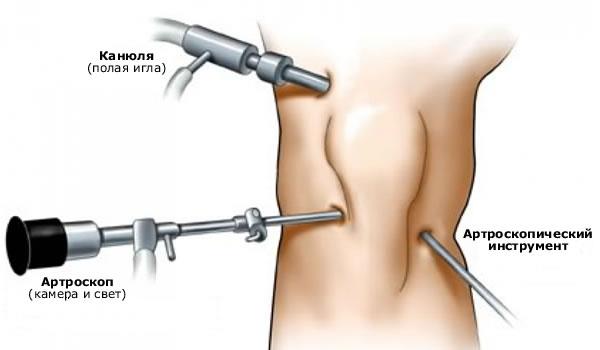jalgade poidlate artriit