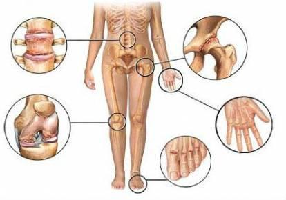 artriit phalange sormed