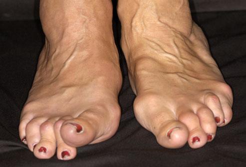 meetodid artrosi jalgade raviks