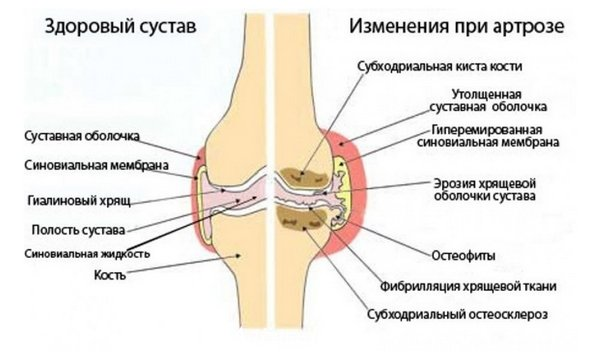 sellest mida kate liigesed ja sormed on haiget teinud kasi liigeste ravi parast murdumist