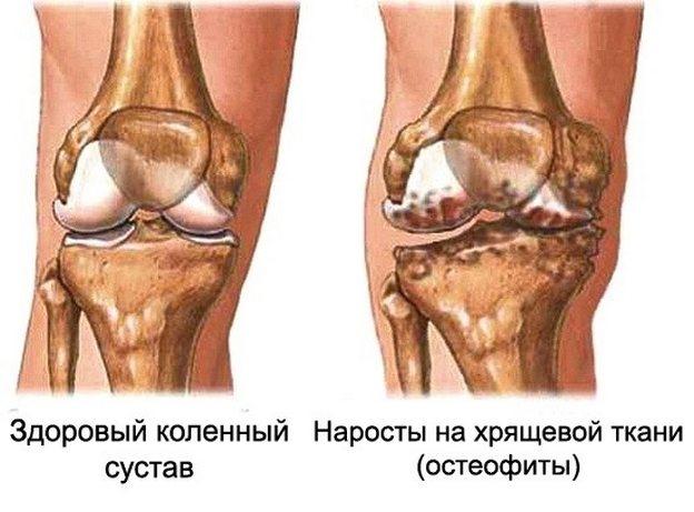 inimeste meetod liigeste raviks artroosi sormede ja olgade liigeste artriit