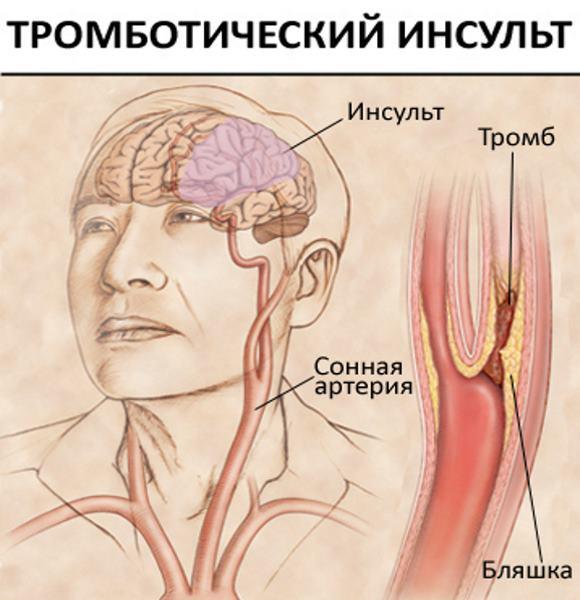 lazarevi haiguse liigesed veiderite veiderite ravi