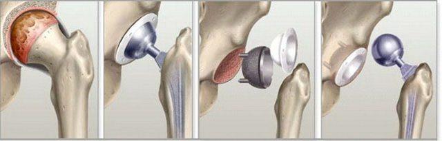 liigeste havitamise haigused sormede liigeste artriit artroos