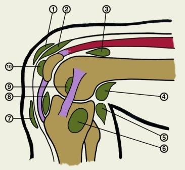 mis ahvardab artriidi kaed