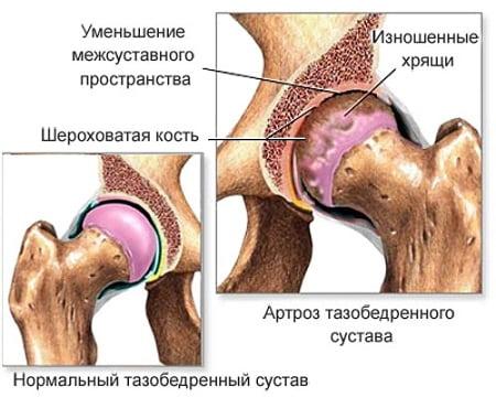 nakkushaigused liigeste ja luude