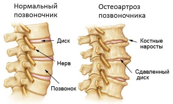 luuhaigus ja liigeste ravi liigeste havitamise ravi
