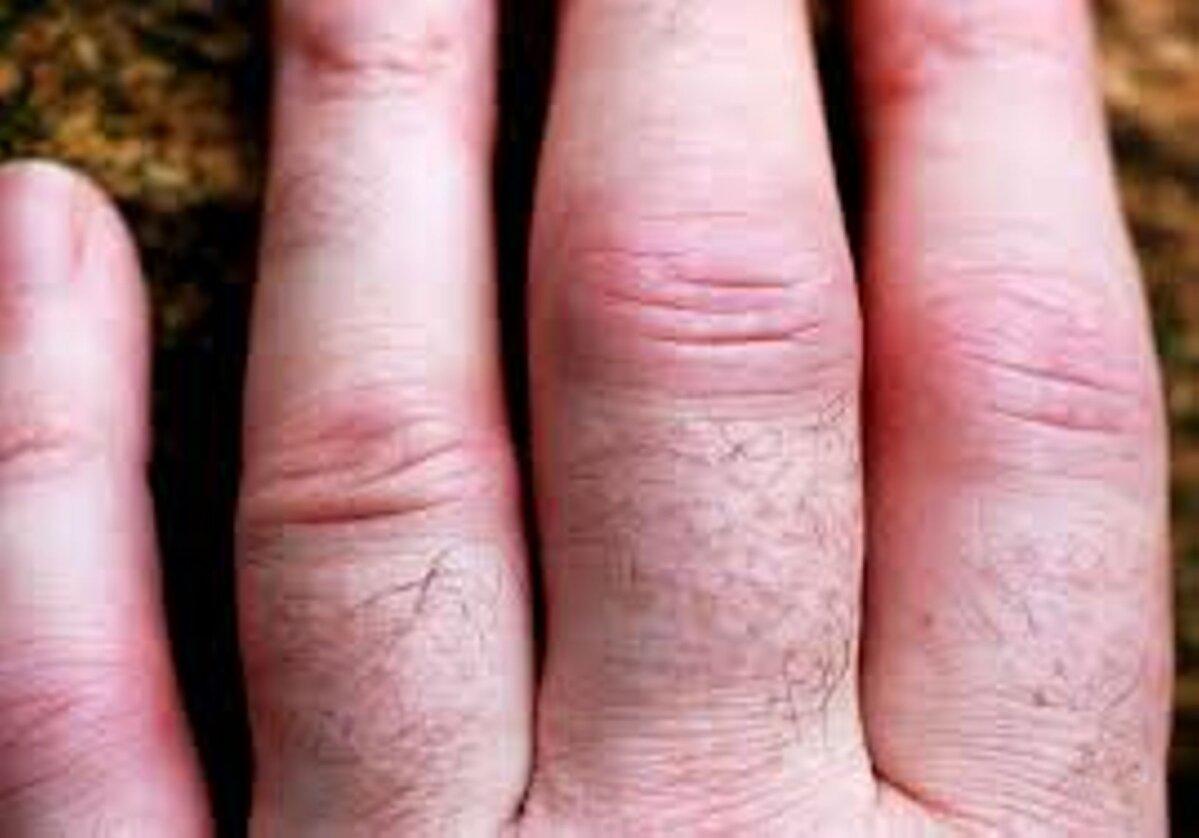 sorme liigese artriit