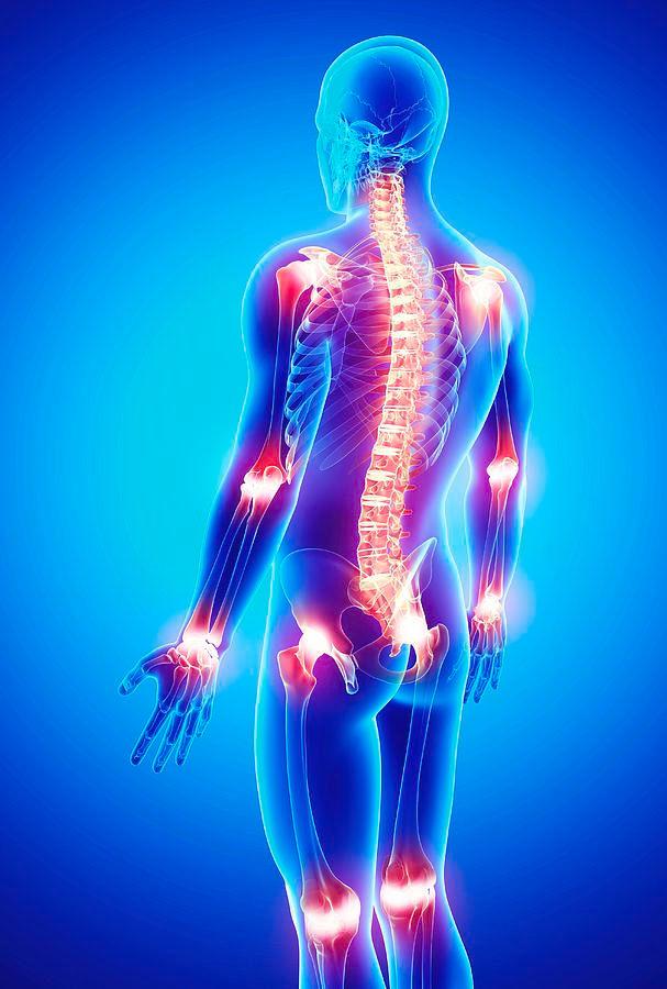 arthroosi jala mazi ravi