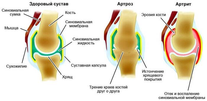 luud ja liigeste norkus vesi ja liigeste haigused