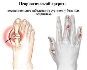 arruga ravi susteem roe koos liigese artroosiga