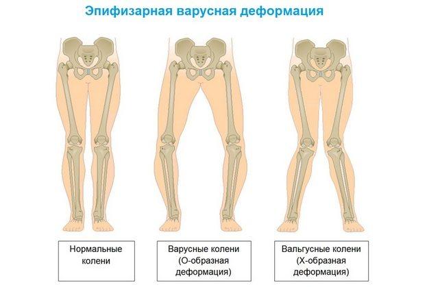 koigi liigeste ja lihaste valu vaga valulik liigend kuunarnuki