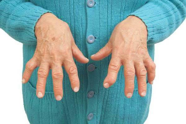 poluartriidi liigeste haigus pohjustab valus liigesed parast insulti mida teha