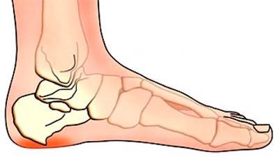 valu jala jalgsi hommikul ravi liigese vigastustel