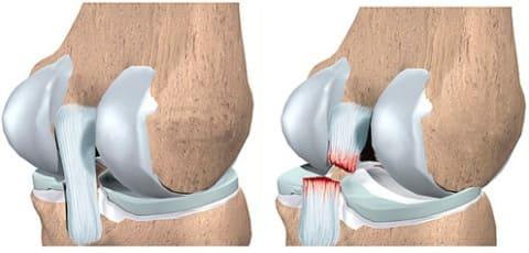 kui valu liigese elbow liigeste artroos 1 kraadi