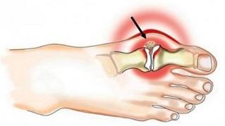 liigeste nakkushaiguste tunnused koik luud ja liigesed voivad haiget teha